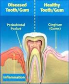 gum_treatment_clip_image002.jpg