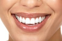 smile with bleached, white teeth