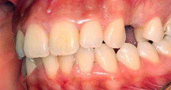 implant_stage1.JPG