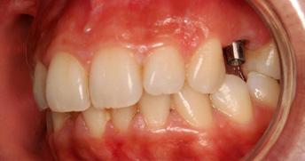 implant_stage2.jpg