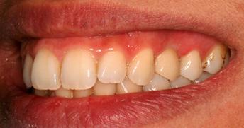 implant_stage3.jpg
