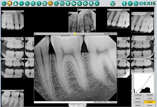 x_ray_img.jpg