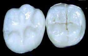 dental_sealants.jpg