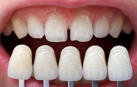 Kettle Moraine Dental in Waukesha County WI