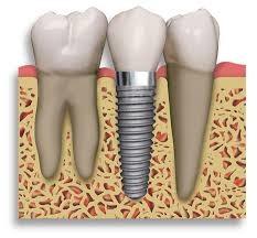 implant_pic.jpg