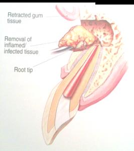 EndoMicrosurgery1_267x300.png
