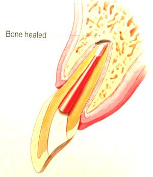 EndoMicrosurgery2.png