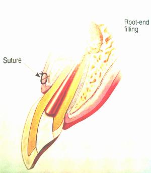 EndoMicrosurgery3.png