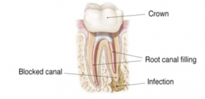 EndodonticRetreatment1_300x145.png