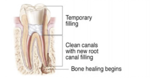 EndodonticRetreatment_2_300x156.png