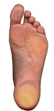 Knoxville Podiatrist | Knoxville Flatfoot (Fallen Arches) | TN | Knoxville Footcare |