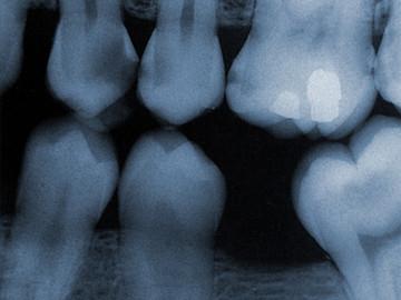 digital_x_ray.jpg
