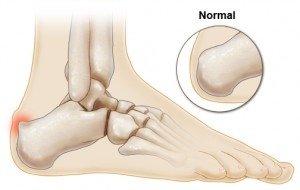 Richmond, VA Podiatrist | Richmond, VA Haglund's Deformity | VA | Preventive Foot Care |