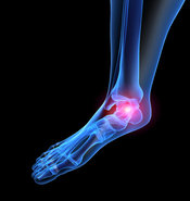 Richmond, VA Podiatrist | Richmond, VA Conditions | VA | Preventive Foot Care |