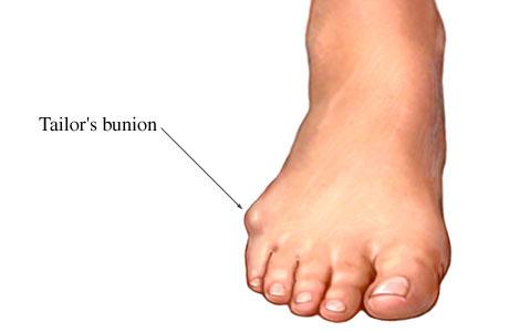 Tailors_Bunion_Image.jpg