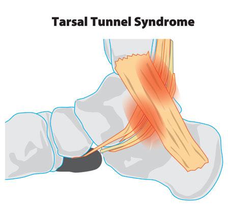 Tarsal_tunnell_syndrome.jpg