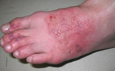 allergic_contact_dermatitis.jpg