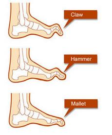 claw_hammer_mallet_toe.jpg