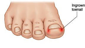 ingrown_toenail.jpg