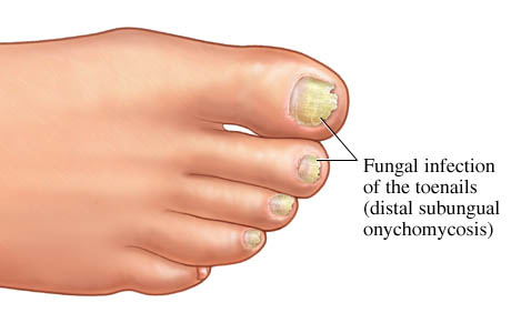 onychomycosis.jpg