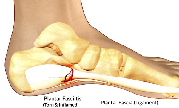 plantar_fasciitis.png