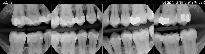 x_ray1.jpg