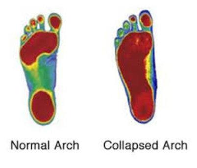 Lawton Chiropractor | Lawton chiropractic Custom Foot Orthotics |  OK |