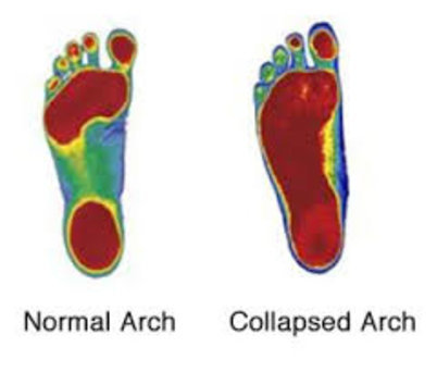Lawton Chiropractor   Lawton chiropractic Custom Foot Orthotics    OK  