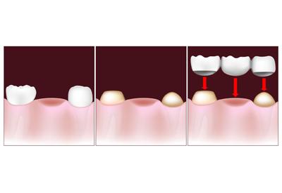 PDM_Dental_Bridge_Procedure.jpg