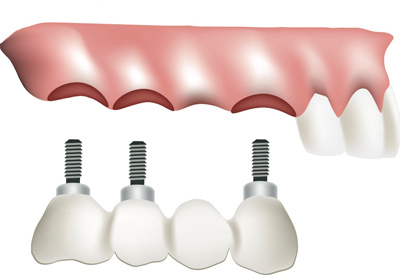 PDM_Dental_Implant_Bridge.jpg