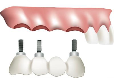 PDM_Dental_Implant_Bridge.jpg