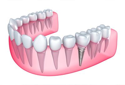 PDM_Dental_Implant_Diagram.jpg