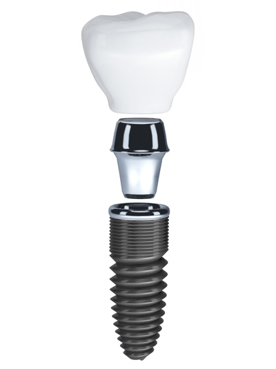 PDM_Dental_Implant_Pieces.jpg