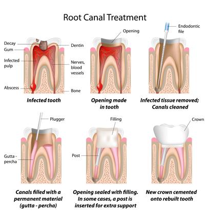 PDM_Root_Canal_Procedure_thumb.jpg