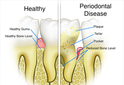 PDM_Tooth_and_Bone_Loss.jpg