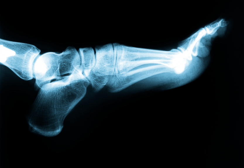 Richland Podiatrist | Richland Plantar Fasciitis | WA | Columbia Foot Health Clinic |
