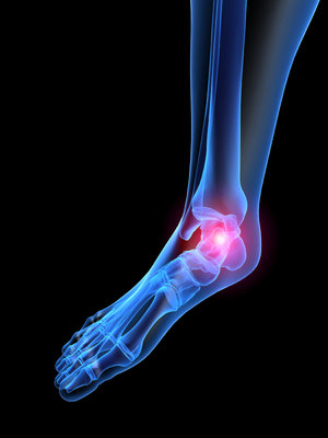 Charlotte Podiatrist | Charlotte Rheumatoid Arthritis | NC | Charlotte Foot & Ankle Specialists |