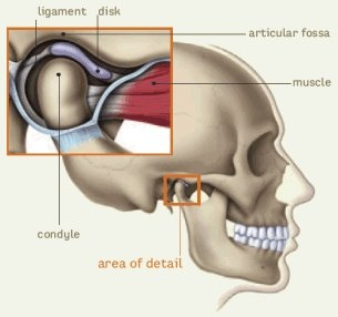 Headache5.jpg