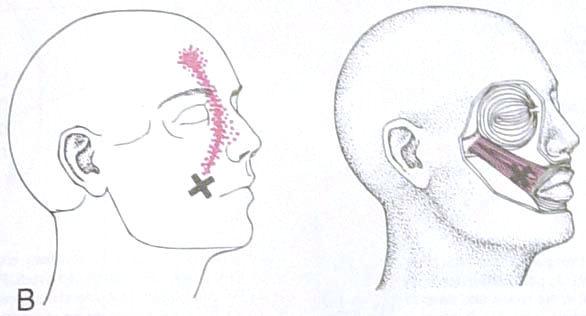 facial_exercises2.jpg