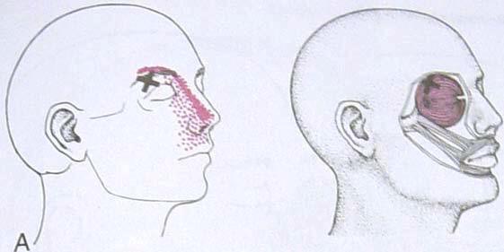 facial_exercises3.jpg