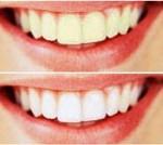 teeth_150x134.jpg