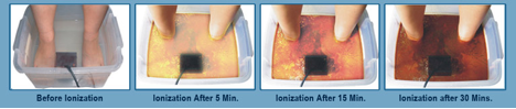 St. Augustine Chiropractor | St. Augustine chiropractic Ion Cleanse Foot Detoxification |  FL |