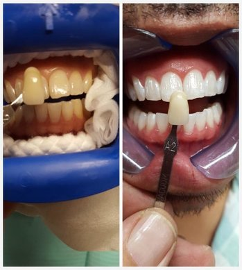 Smile Savers in Chicago IL
