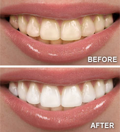before_after_teeth_whitening.jpg