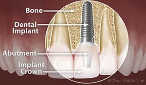 dental_implant_anatomy.jpg