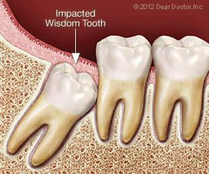 impacted_wisdom_tooth.jpg