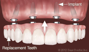 implants_replace_all_teeth.jpg