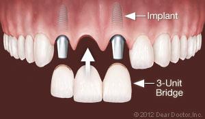 implants_replace_multiple_teeth.jpg