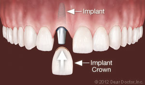 implants_replace_one_tooth.jpg