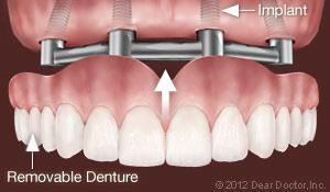 implants_support_removable_dentures.jpg